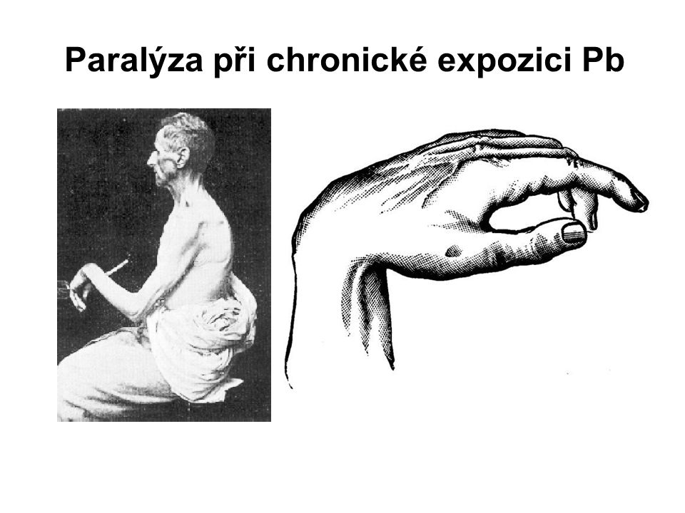 Paralýza při chronické expozici Pb