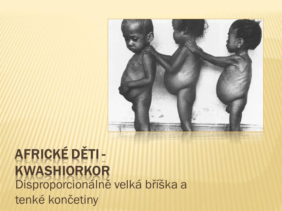 Africké děti - kwashiorkor