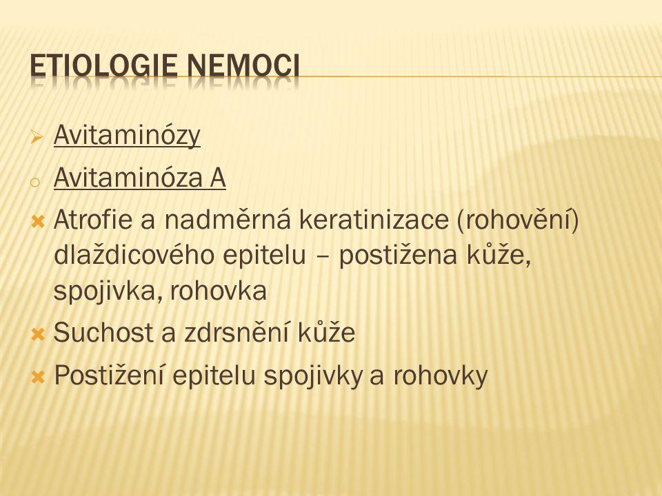 ETIOLOGIE NEMOCI Avitaminózy Avitaminóza A