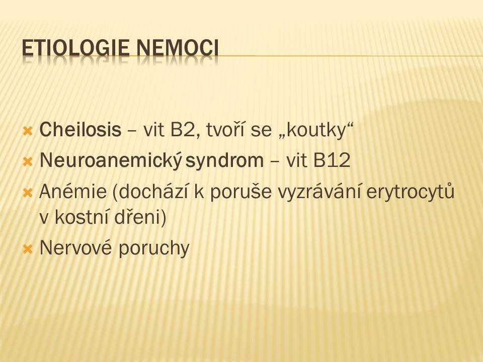 """ETIOLOGIE NEMOCI Cheilosis – vit B2, tvoří se """"koutky"""