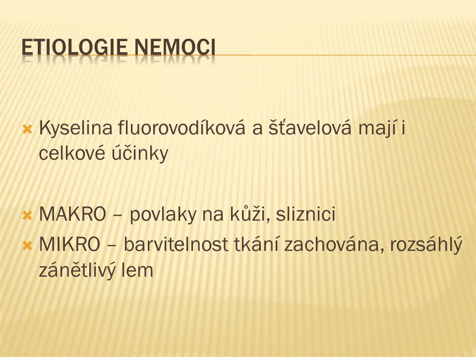 ETIOLOGIE NEMOCI Kyselina fluorovodíková a šťavelová mají i celkové účinky. MAKRO – povlaky na kůži, sliznici.