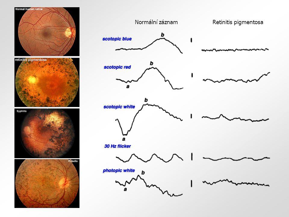 Retinitis pigmentosa Normální záznam