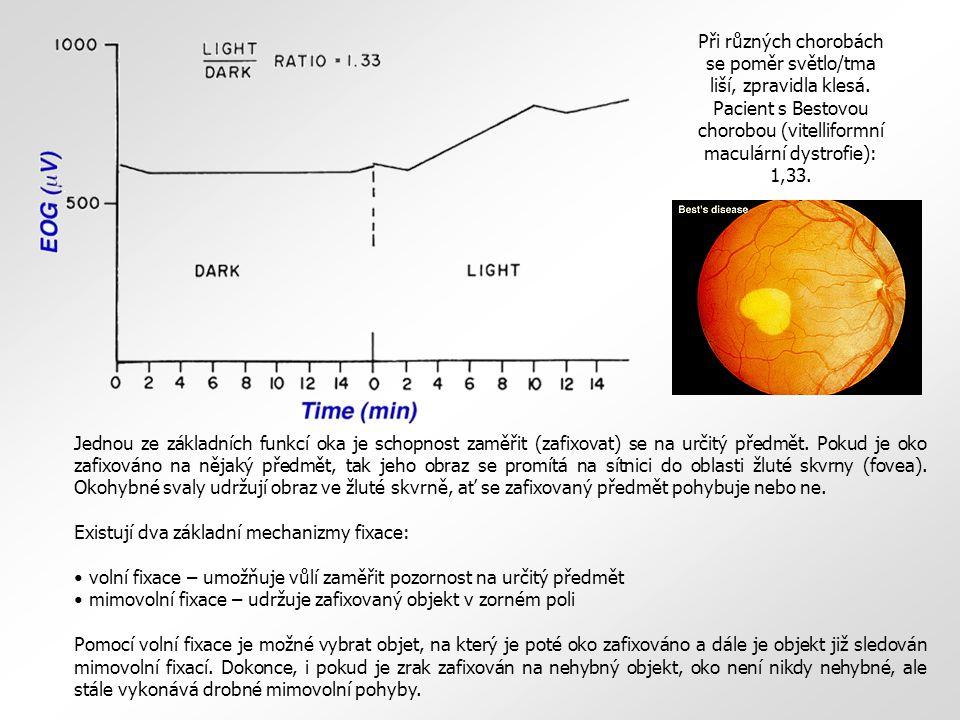 Při různých chorobách se poměr světlo/tma liší, zpravidla klesá
