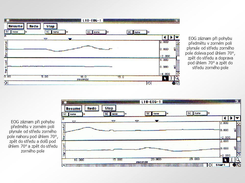 EOG záznam při pohybu předmětu v zorném poli plynule od středu zorného pole doleva pod úhlem 70°, zpět do středu a doprava pod úhlem 70° a zpět do středu zorného pole