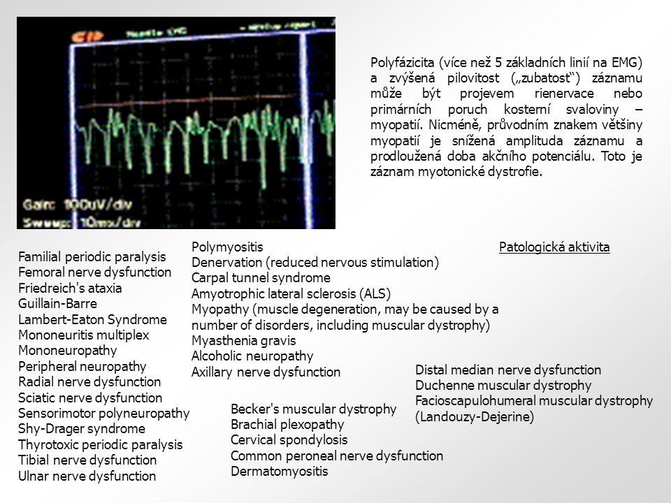 """Polyfázicita (více než 5 základních linií na EMG) a zvýšená pilovitost (""""zubatost ) záznamu může být projevem rienervace nebo primárních poruch kosterní svaloviny – myopatií. Nicméně, průvodním znakem většiny myopatií je snížená amplituda záznamu a prodloužená doba akčního potenciálu. Toto je záznam myotonické dystrofie."""