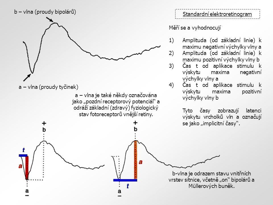 Standardní elektroretinogram