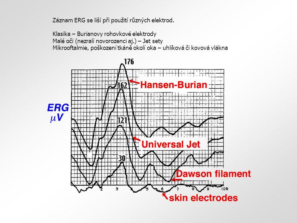 Záznam ERG se liší při použití různých elektrod.