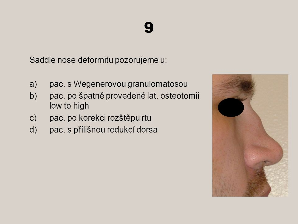 9 Saddle nose deformitu pozorujeme u: