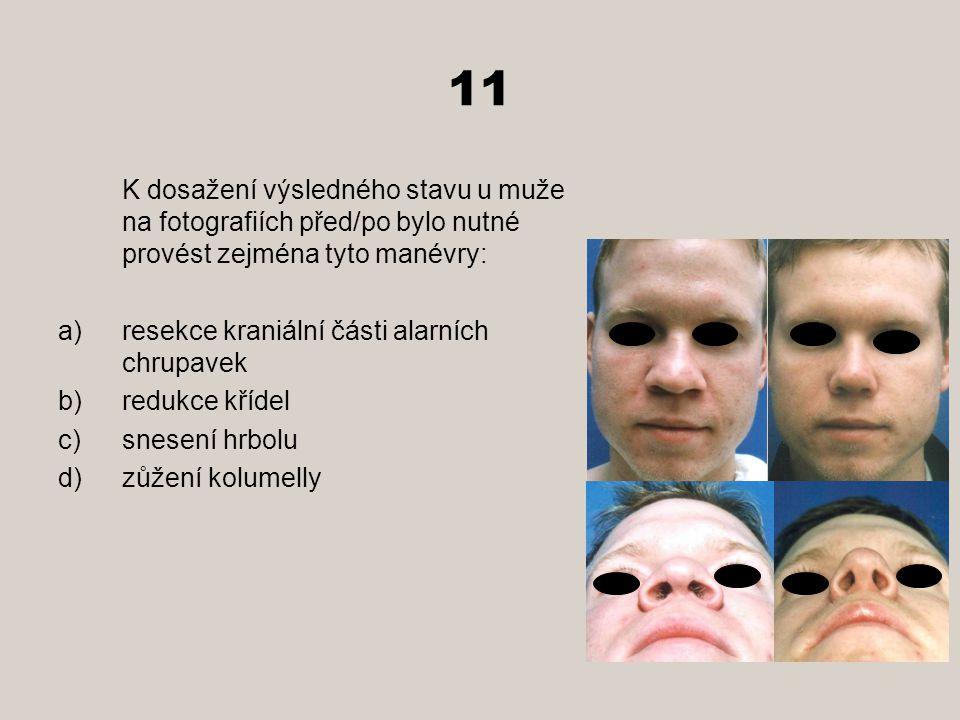 11 K dosažení výsledného stavu u muže na fotografiích před/po bylo nutné provést zejména tyto manévry: