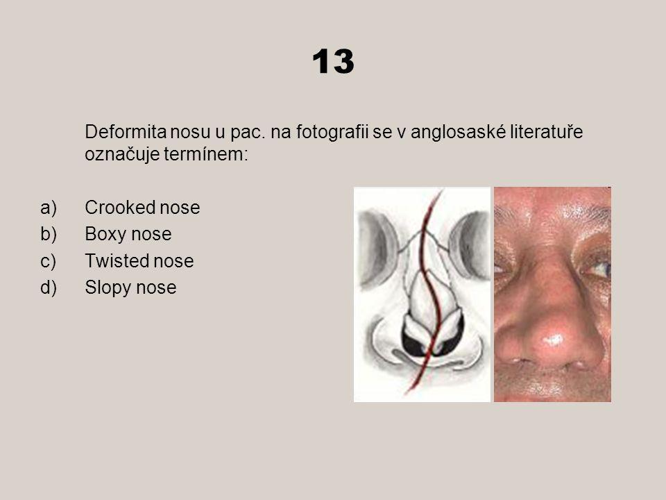 13 Deformita nosu u pac. na fotografii se v anglosaské literatuře označuje termínem: Crooked nose.