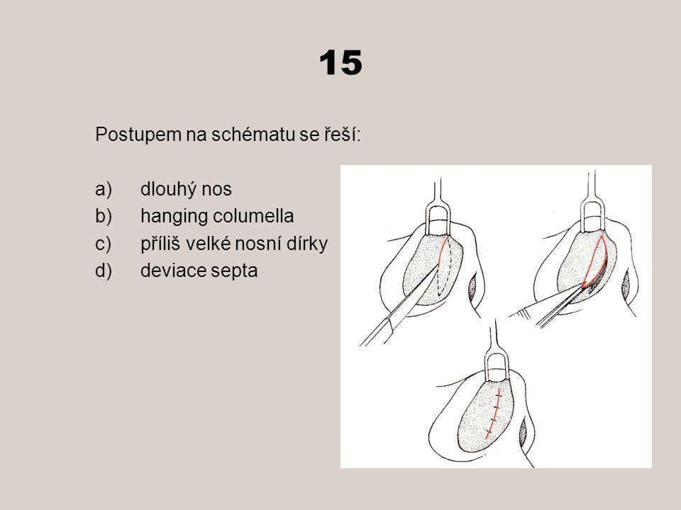 15 Postupem na schématu se řeší: dlouhý nos hanging columella