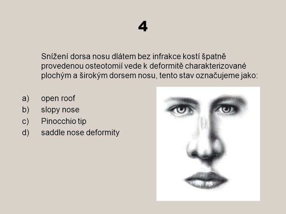 4 open roof slopy nose Pinocchio tip saddle nose deformity