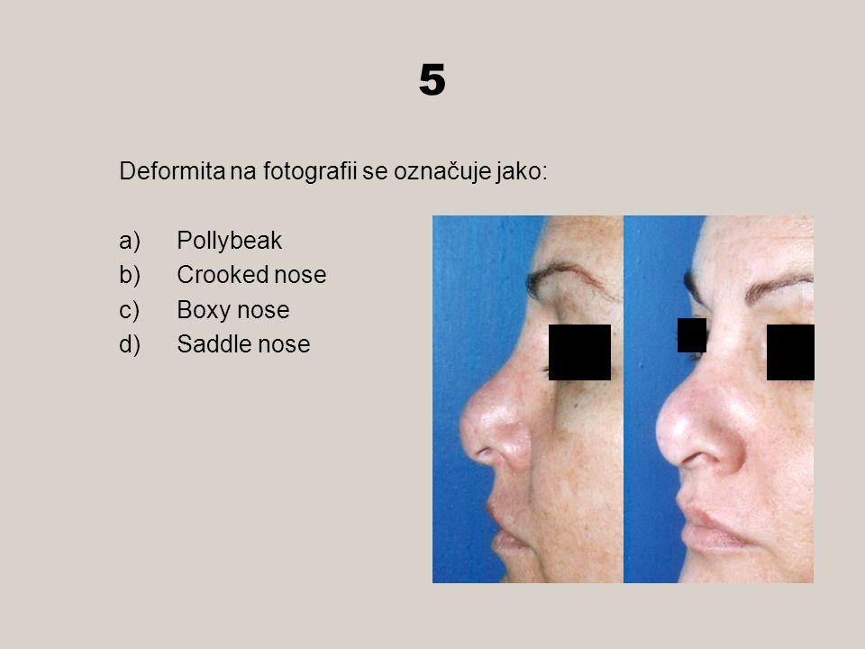 5 Deformita na fotografii se označuje jako: Pollybeak Crooked nose