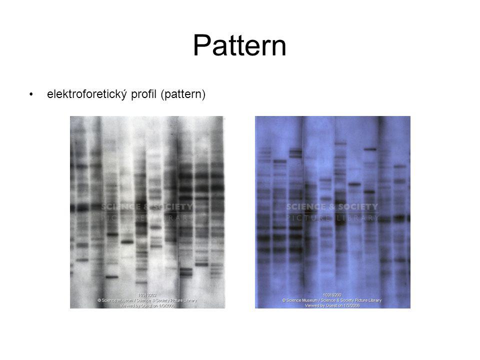 Pattern elektroforetický profil (pattern)