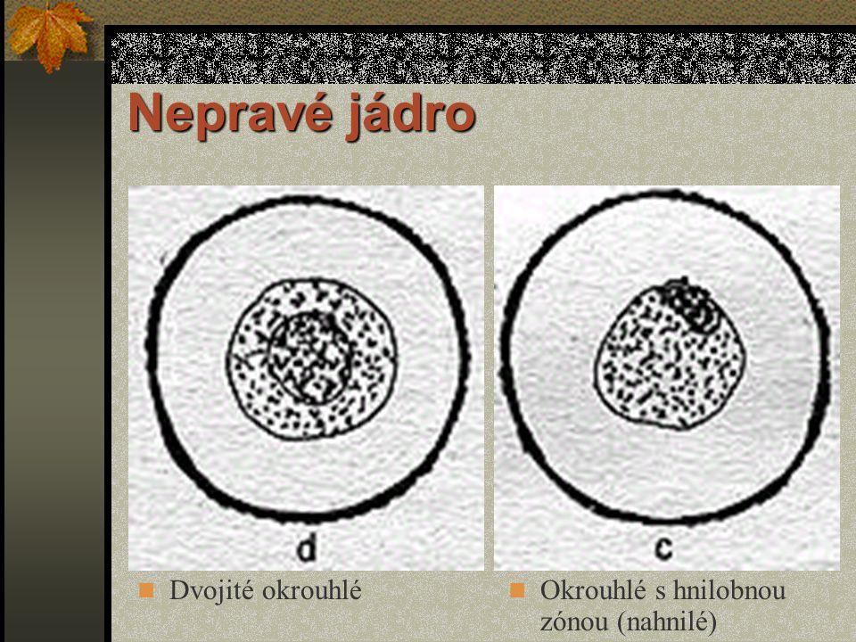 Nepravé jádro Dvojité okrouhlé Okrouhlé s hnilobnou zónou (nahnilé)
