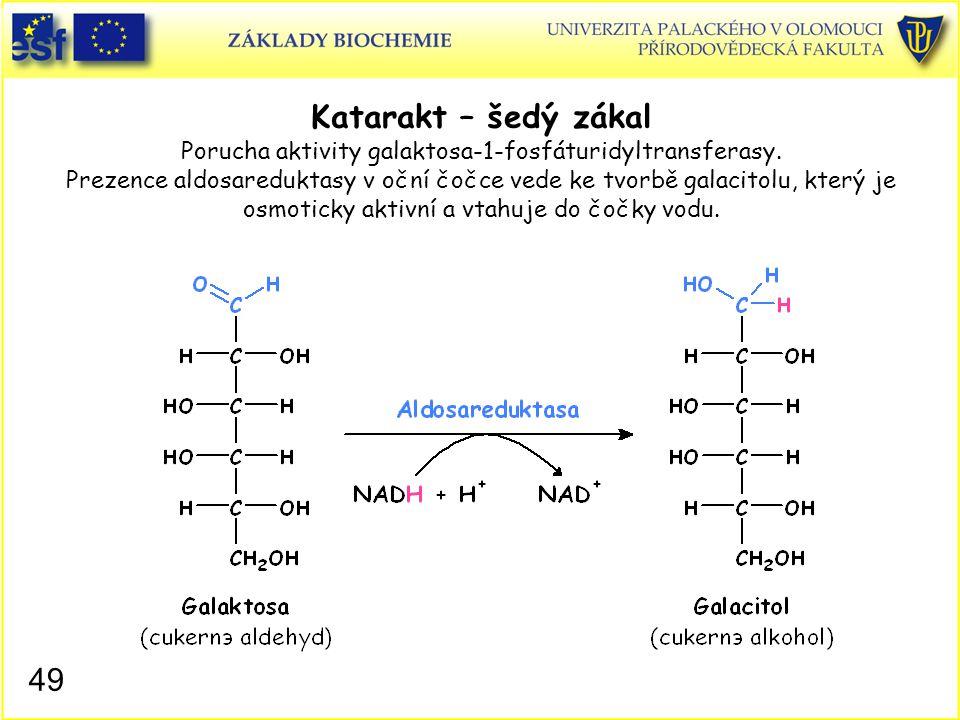 Katarakt – šedý zákal Porucha aktivity galaktosa-1-fosfáturidyltransferasy. Prezence aldosareduktasy v oční čočce vede ke tvorbě galacitolu, který je osmoticky aktivní a vtahuje do čočky vodu.