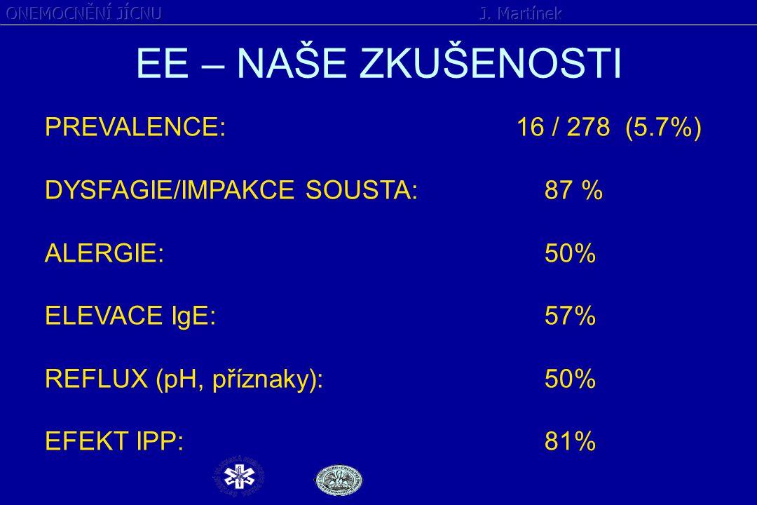EE – NAŠE ZKUŠENOSTI PREVALENCE: 16 / 278 (5.7%)
