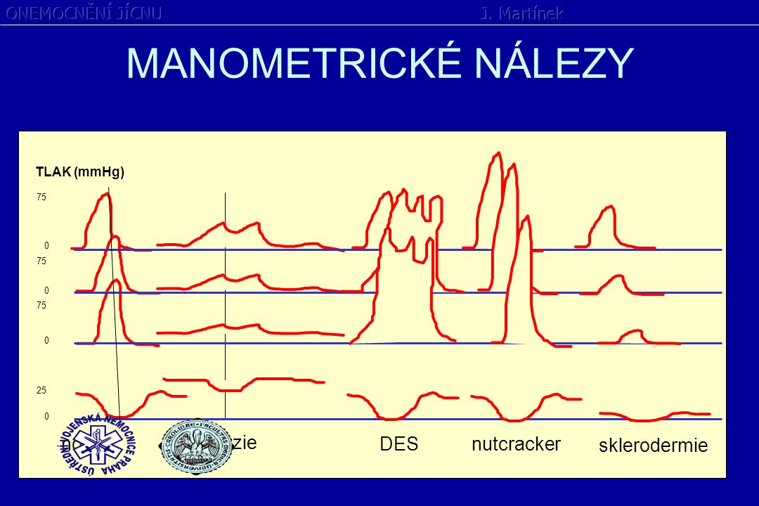 MANOMETRICKÉ NÁLEZY norma achalázie DES nutcracker sklerodermie