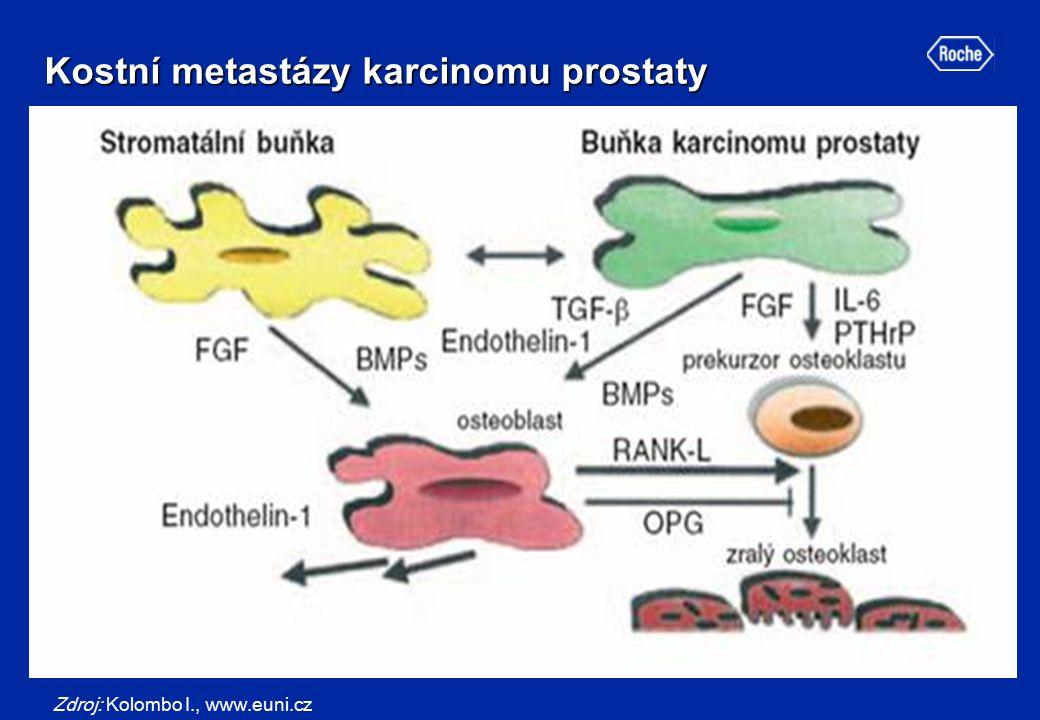 Kostní metastázy karcinomu prostaty