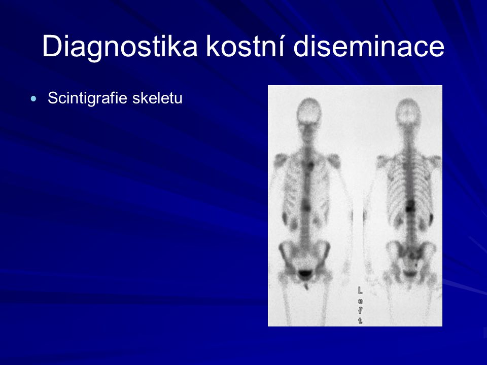 Diagnostika kostní diseminace