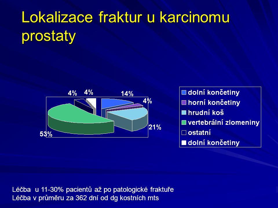 Lokalizace fraktur u karcinomu prostaty