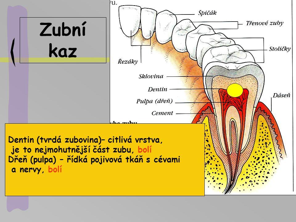 Zubní kaz Dentin (tvrdá zubovina)– citlivá vrstva,