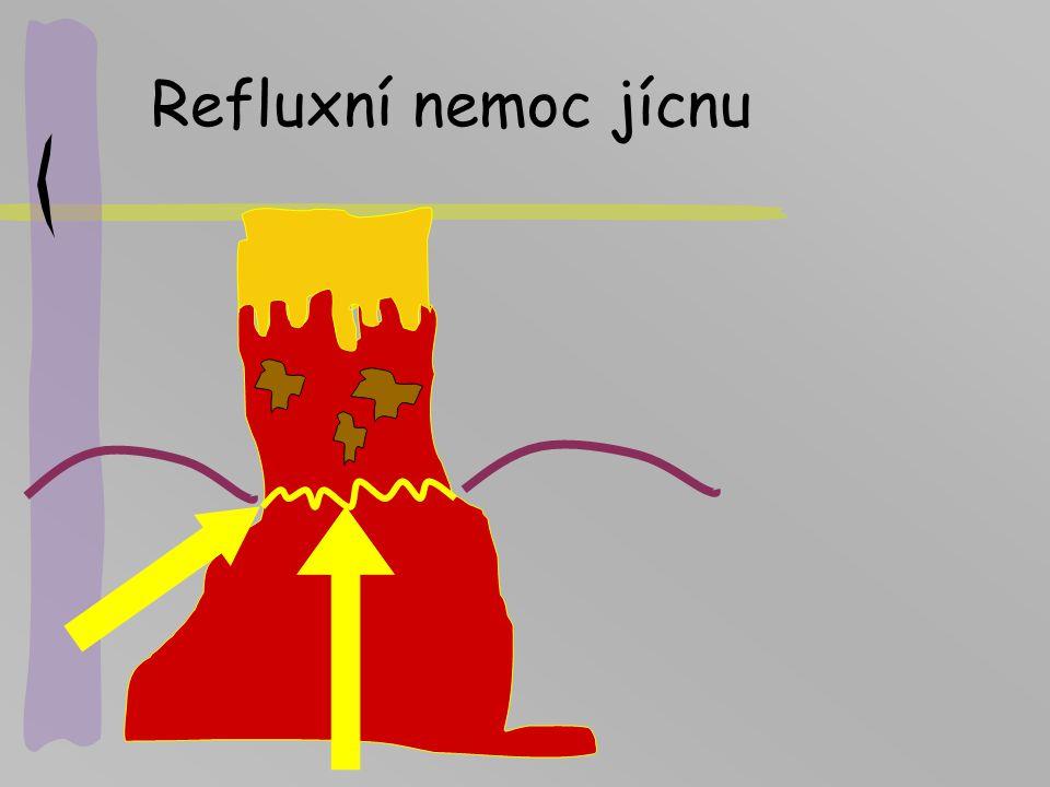 Refluxní nemoc jícnu