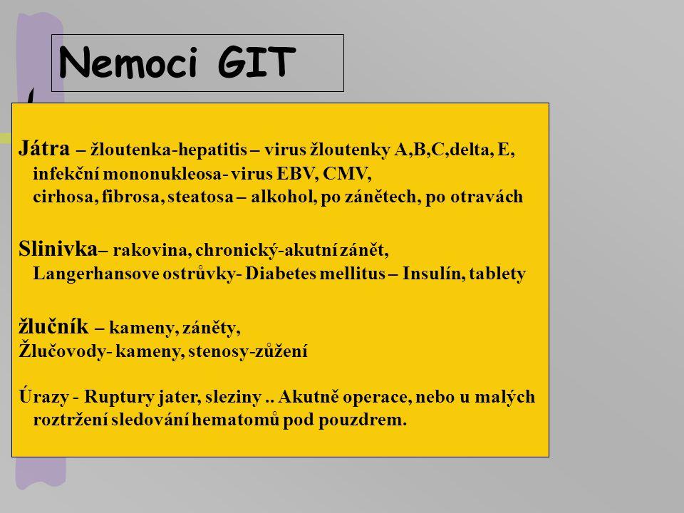 Nemoci GIT Játra – žloutenka-hepatitis – virus žloutenky A,B,C,delta, E, infekční mononukleosa- virus EBV, CMV,
