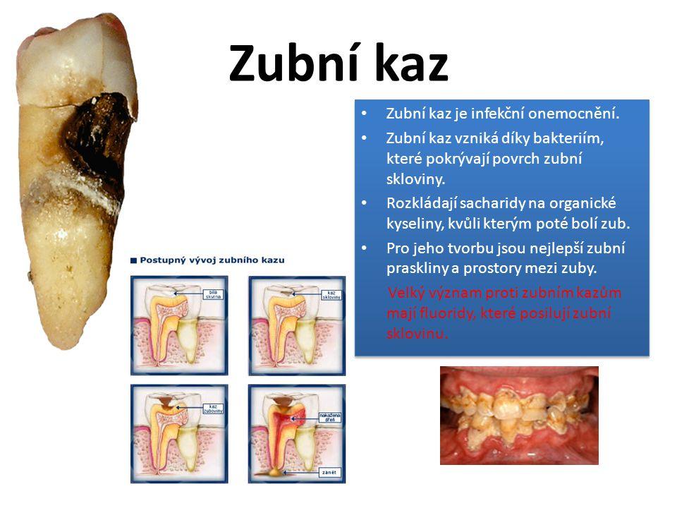 Zubní kaz Zubní kaz je infekční onemocnění.