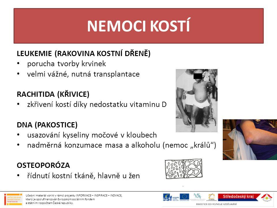 NEMOCI KOSTÍ LEUKEMIE (RAKOVINA KOSTNÍ DŘENĚ) porucha tvorby krvinek