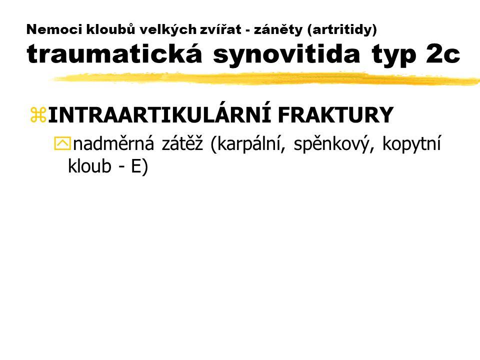 INTRAARTIKULÁRNÍ FRAKTURY