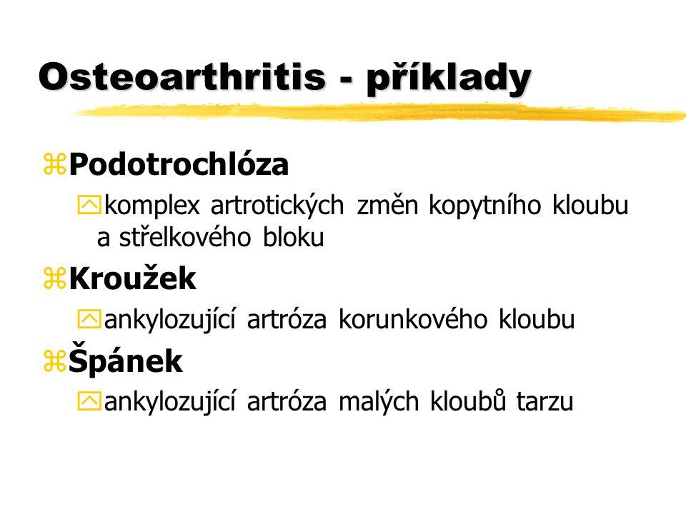 Osteoarthritis - příklady