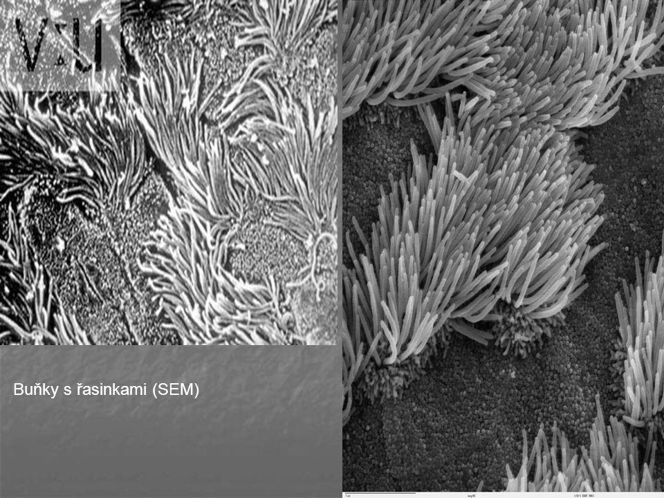 Buňky s řasinkami (SEM)