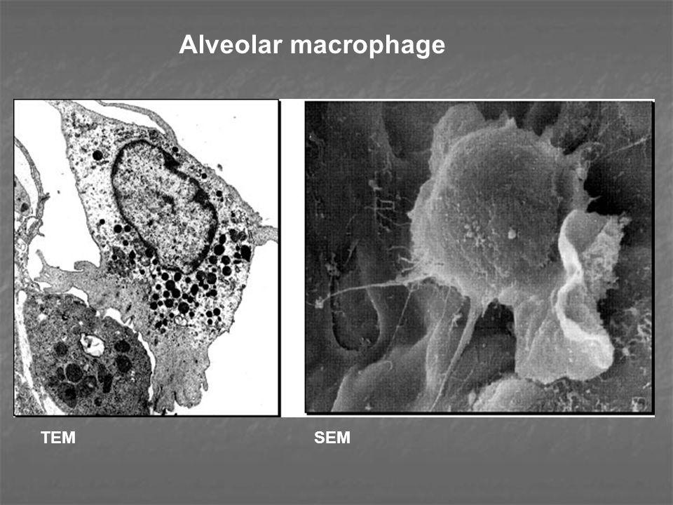 Alveolar macrophage TEM SEM