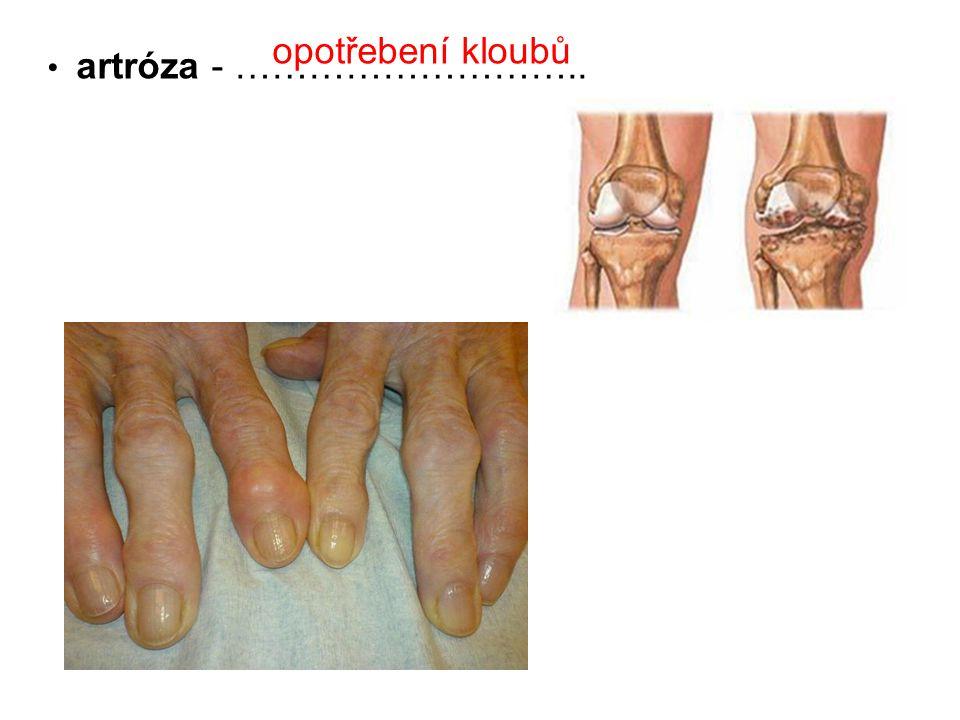 opotřebení kloubů artróza - ………………………..