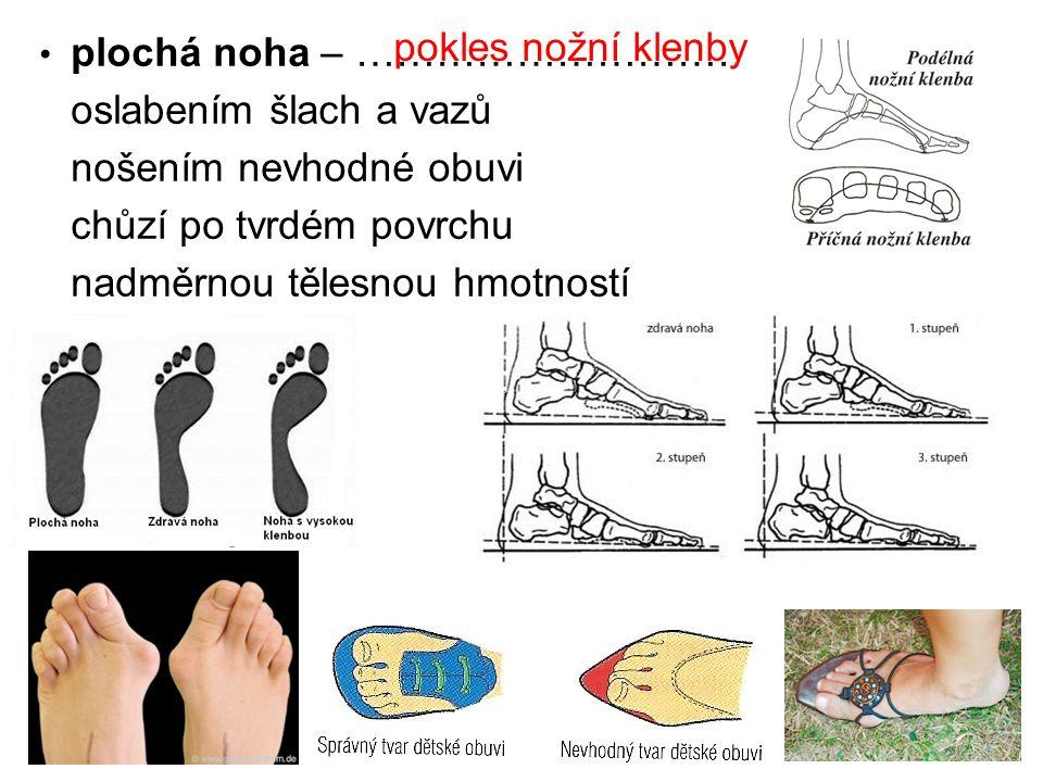 plochá noha – …………………………..