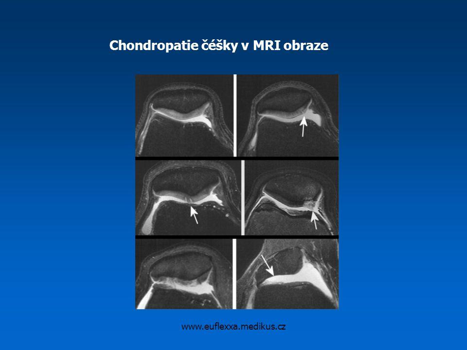 Chondropatie čéšky v MRI obraze