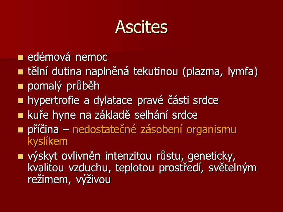 Ascites edémová nemoc tělní dutina naplněná tekutinou (plazma, lymfa)
