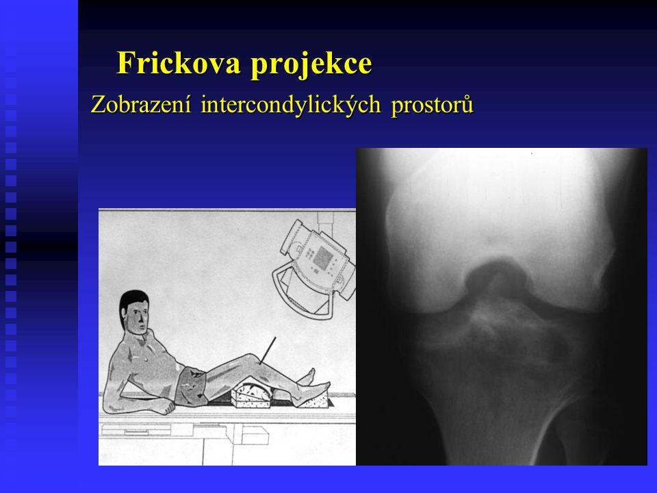 Frickova projekce Zobrazení intercondylických prostorů