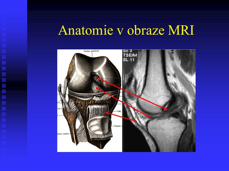 Anatomie v obraze MRI