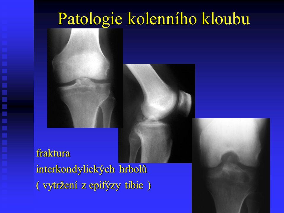 Patologie kolenního kloubu