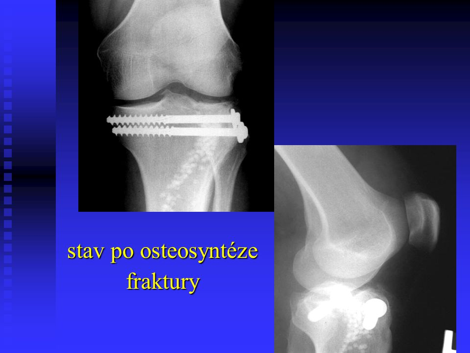 stav po osteosyntéze fraktury