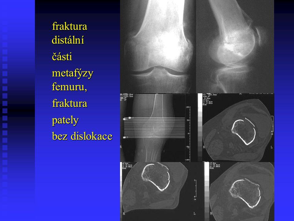 fraktura distální části metafýzy femuru, fraktura pately bez dislokace
