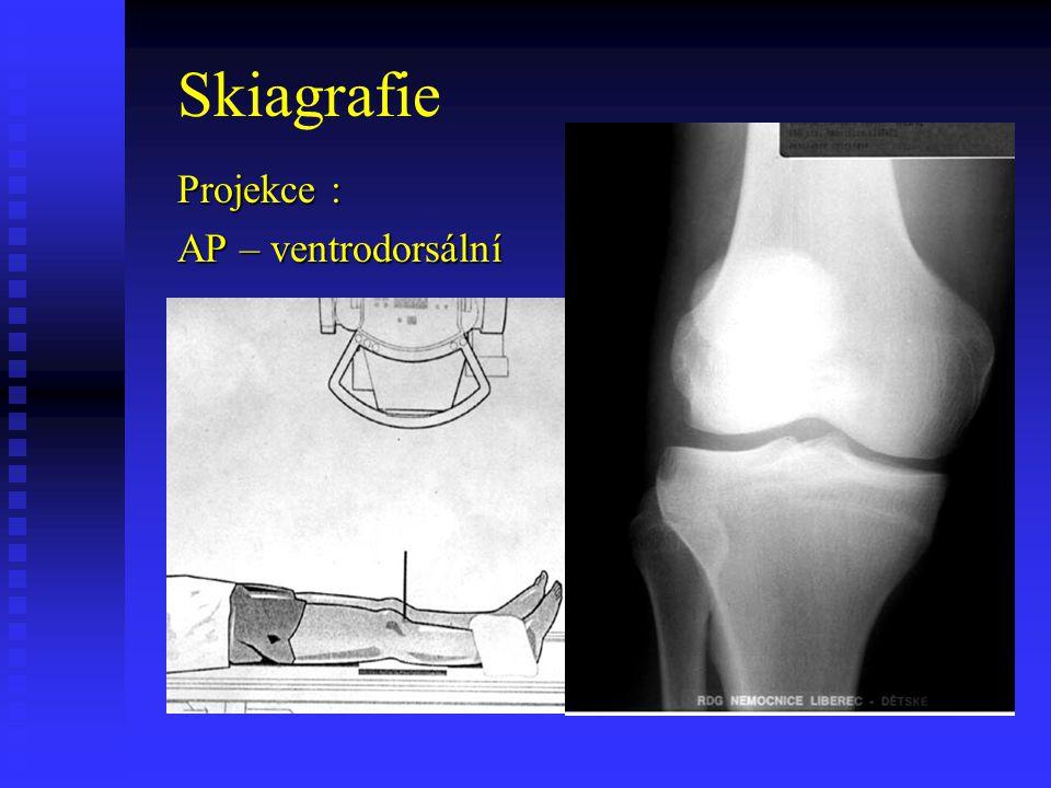 Skiagrafie Projekce : AP – ventrodorsální