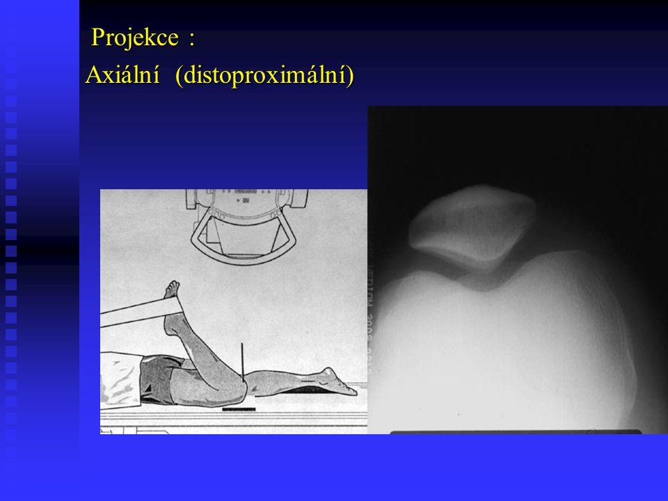 Projekce : Axiální (distoproximální)