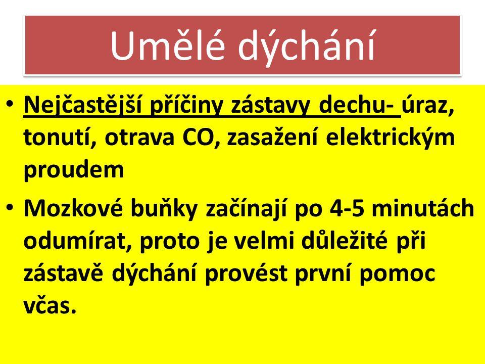 Umělé dýchání Nejčastější příčiny zástavy dechu- úraz, tonutí, otrava CO, zasažení elektrickým proudem.