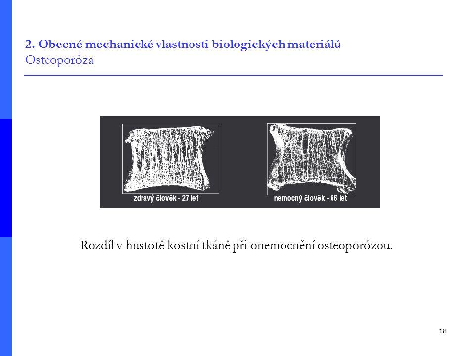 2. Obecné mechanické vlastnosti biologických materiálů Osteoporóza