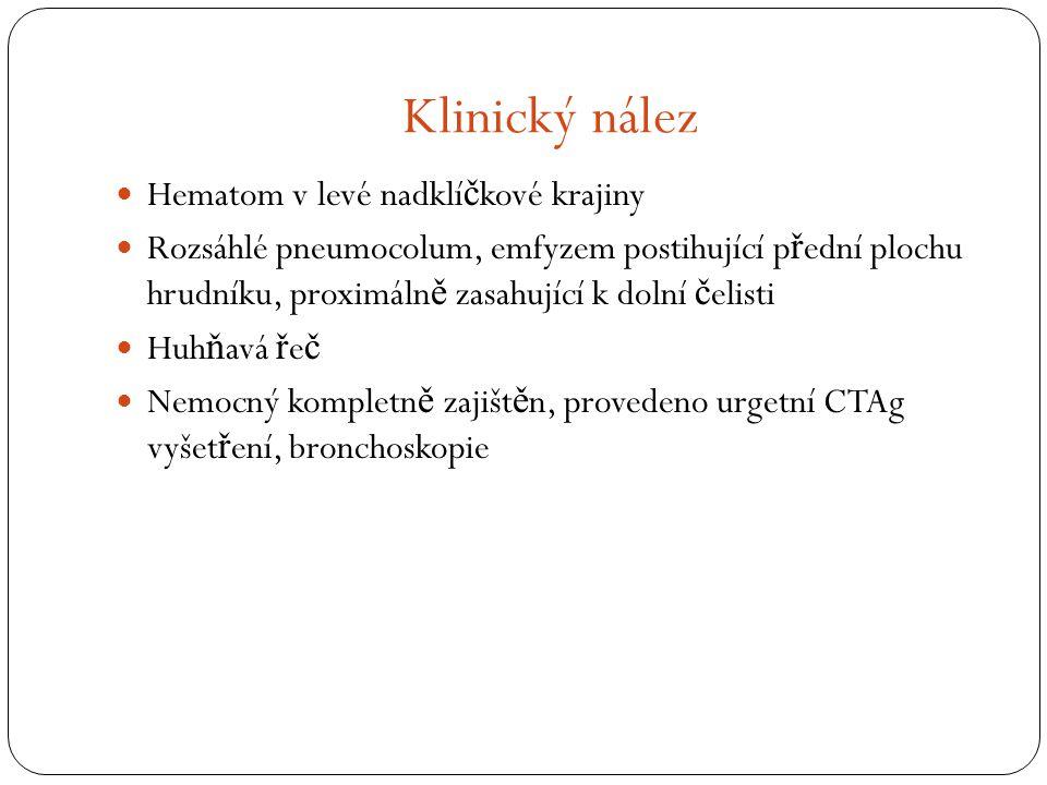 Klinický nález Hematom v levé nadklíčkové krajiny
