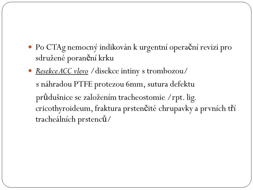 Po CTAg nemocný indikován k urgentní operační revizi pro sdružené poranění krku
