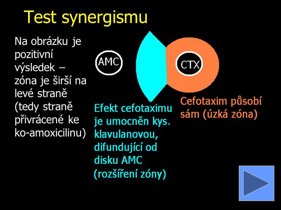 Test synergismu Na obrázku je pozitivní výsledek – zóna je širší na levé straně (tedy straně přivrácené ke ko-amoxicilinu)